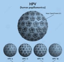 Hpv rák tedavisi Megszünteti a papilloma fórumot