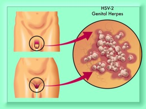 Hpv negatif olmak. Wart virus live outside body, Hpv genital temizlik