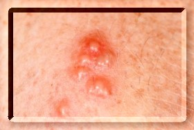 Test genitalis Genital warts